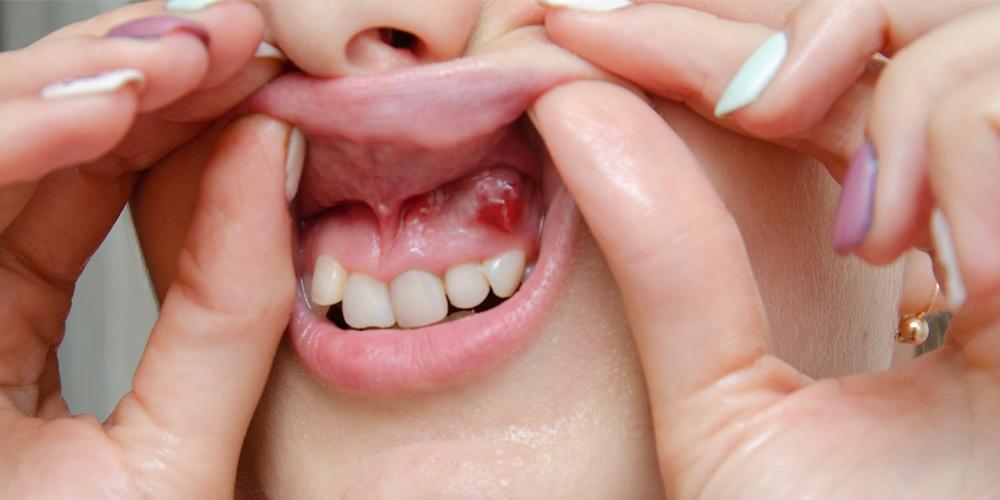 Kystes et tumeurs maxillomandibulaires